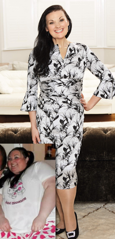 I refused surgery, and lost 17½st with Slimming World
